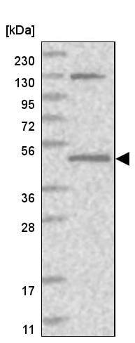 Western blot - Anti-QTRTD1 antibody (ab247002)