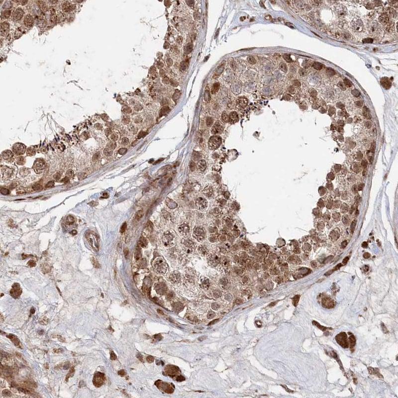 Immunohistochemistry (Formalin/PFA-fixed paraffin-embedded sections) - Anti-POLR3A antibody (ab247007)