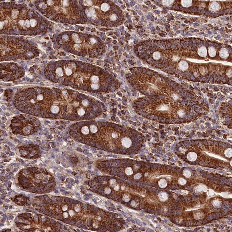 Immunohistochemistry (Formalin/PFA-fixed paraffin-embedded sections) - Anti-NUDT15 antibody (ab247010)