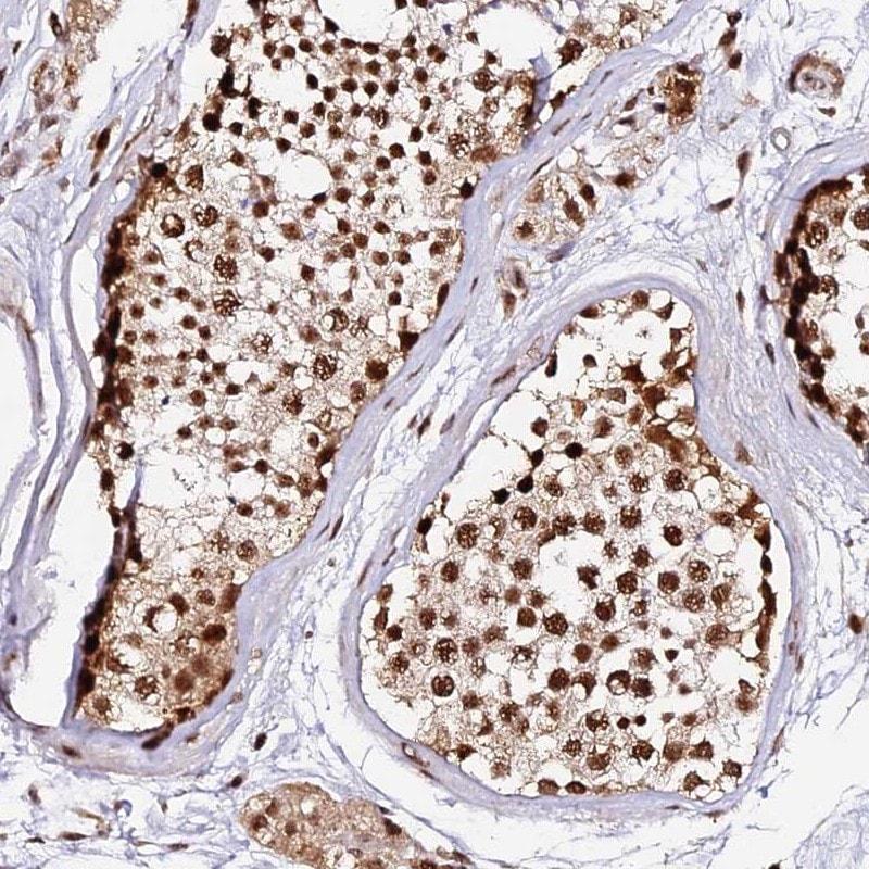 Immunohistochemistry (Formalin/PFA-fixed paraffin-embedded sections) - Anti-MCRS1/MSP58 antibody (ab247013)