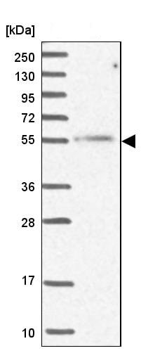 Western blot - Anti-MCRS1/MSP58 antibody (ab247013)