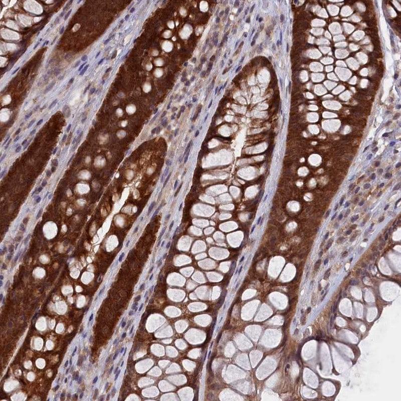 Immunohistochemistry (Formalin/PFA-fixed paraffin-embedded sections) - Anti-HN1L/L11 antibody (ab247030)