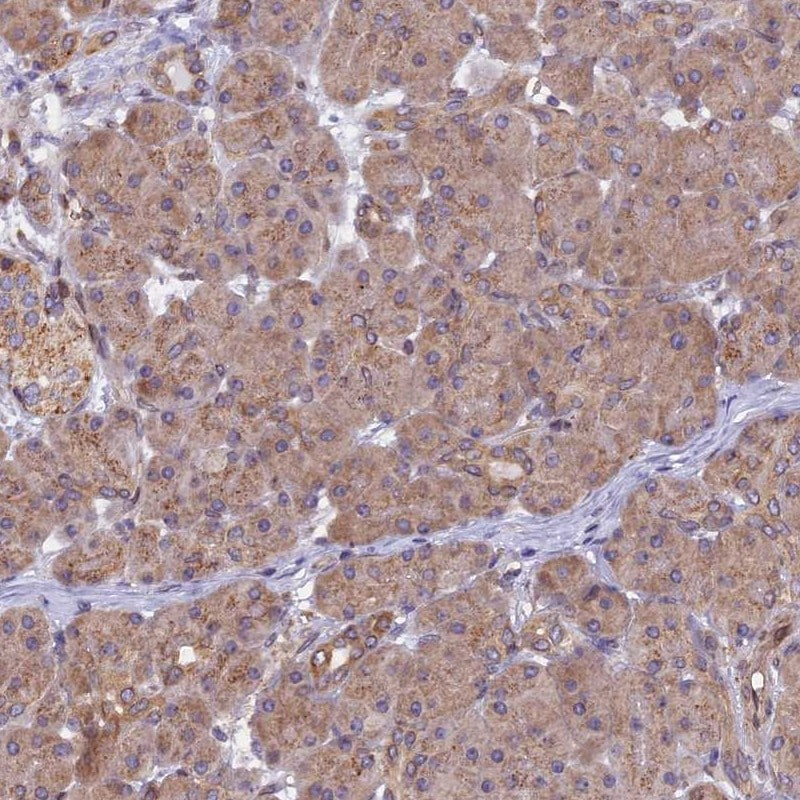 Immunohistochemistry (Formalin/PFA-fixed paraffin-embedded sections) - Anti-CHMP2A/BC2 antibody (ab247031)