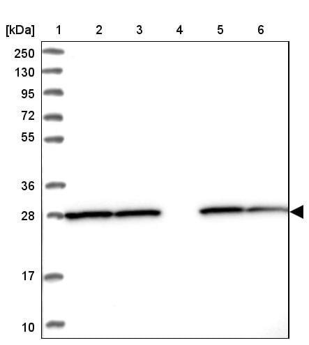 Western blot - Anti-PGAM1 antibody (ab247037)