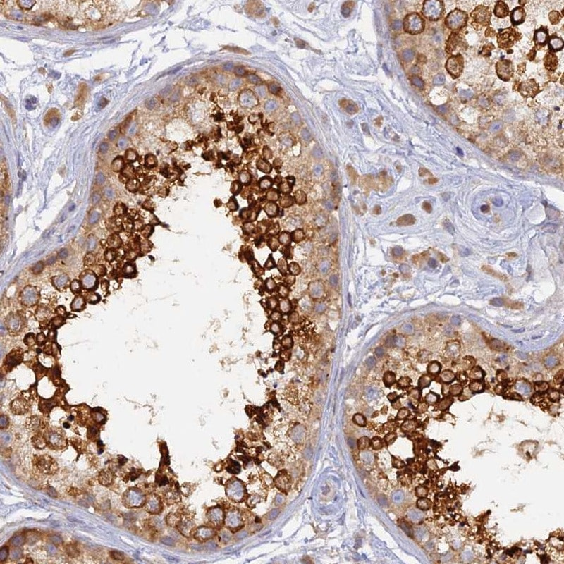 Immunohistochemistry (Formalin/PFA-fixed paraffin-embedded sections) - Anti-WDR62 antibody (ab247045)
