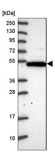 Western blot - Anti-PSG4 antibody (ab247069)