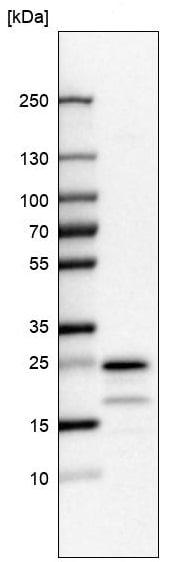 Western blot - Anti-TMEM35 antibody (ab247080)