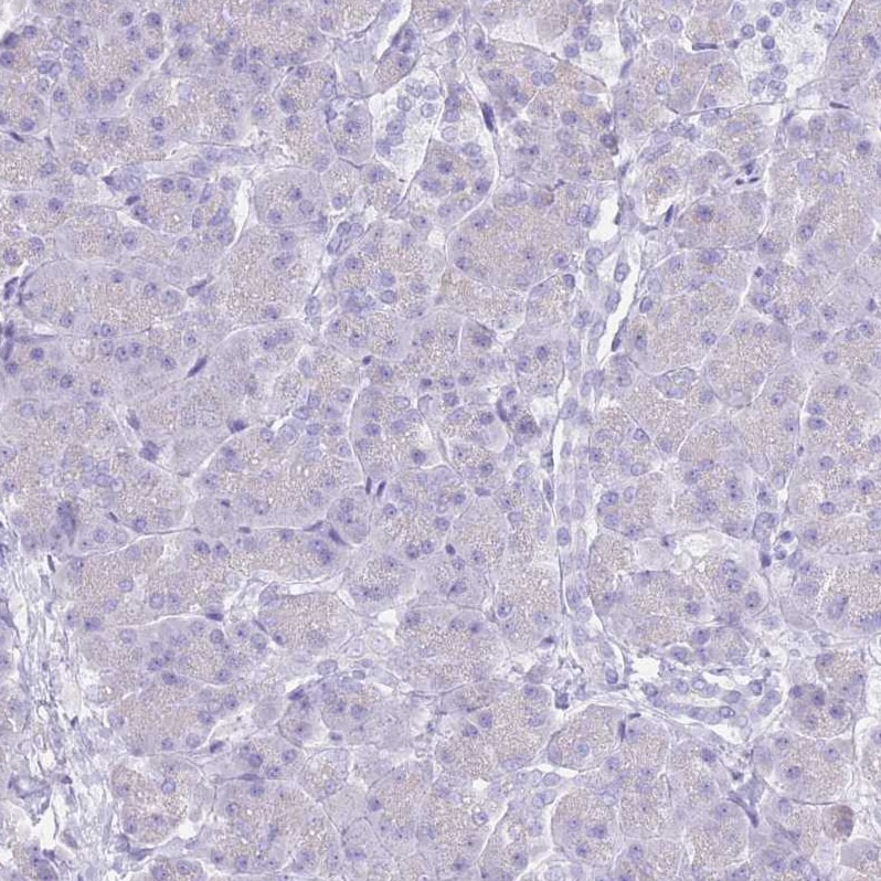 Immunohistochemistry (Formalin/PFA-fixed paraffin-embedded sections) - Anti-CYP21A2 antibody (ab247085)