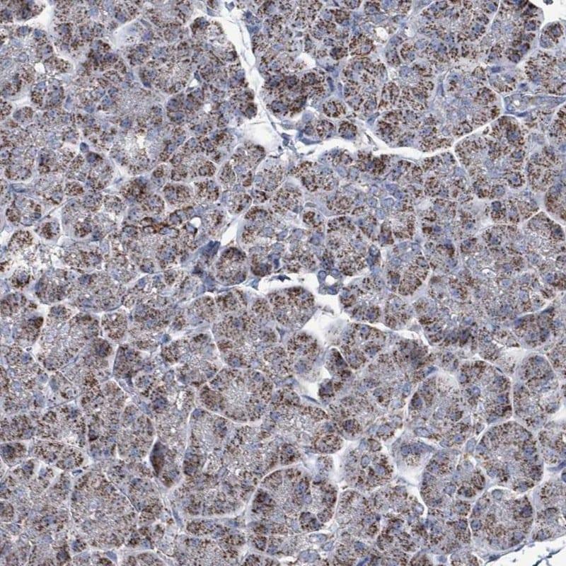 Immunohistochemistry (Formalin/PFA-fixed paraffin-embedded sections) - Anti-IDH3B antibody (ab247089)