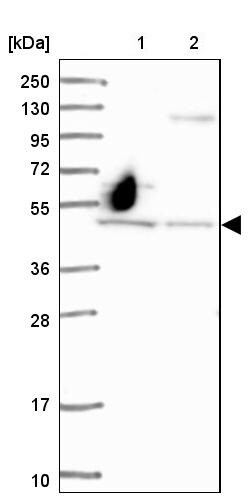 Western blot - Anti-RAI2 antibody (ab247100)