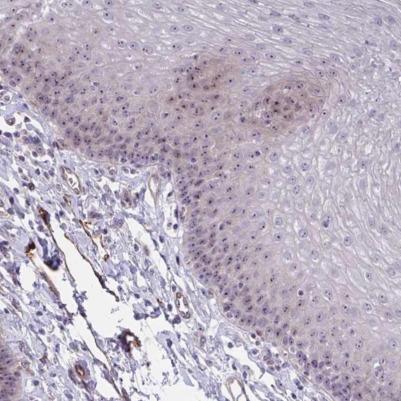 Immunohistochemistry (Formalin/PFA-fixed paraffin-embedded sections) - Anti-Mus81 antibody (ab247136)