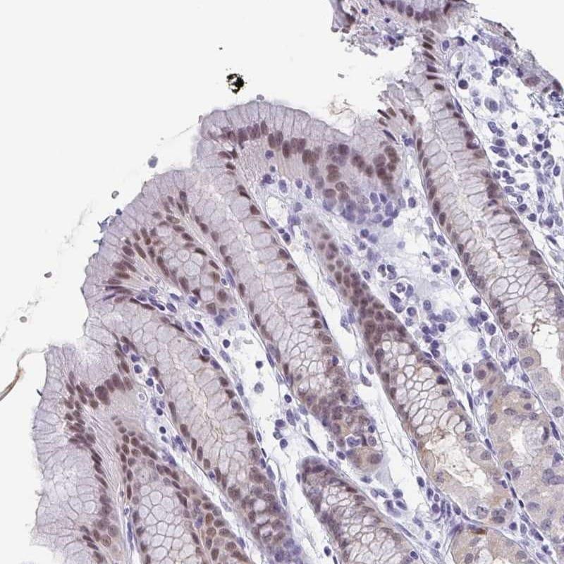 Immunohistochemistry (Formalin/PFA-fixed paraffin-embedded sections) - Anti-PYCRL antibody (ab247150)