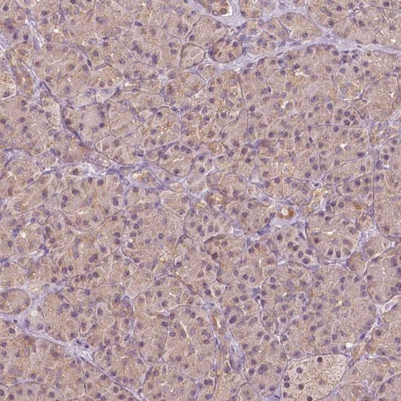Immunohistochemistry (Formalin/PFA-fixed paraffin-embedded sections) - Anti-SHK antibody (ab247151)