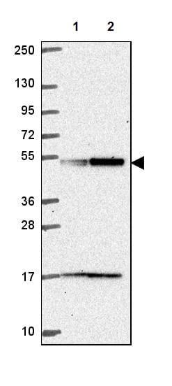 Western blot - Anti-UBA3 antibody (ab247153)