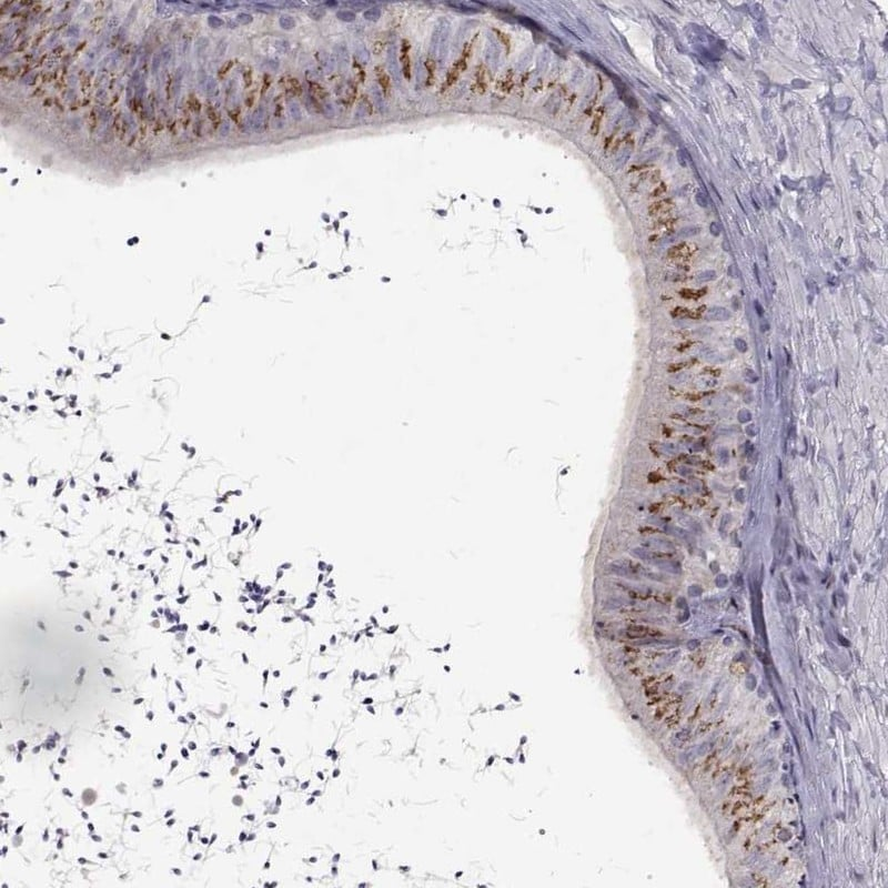 Immunohistochemistry (Formalin/PFA-fixed paraffin-embedded sections) - Anti-DEFB137 antibody (ab247165)