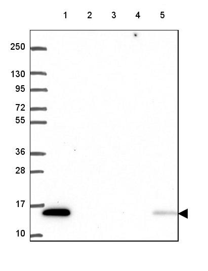 Western blot - Anti-KIAA0040 antibody (ab247170)