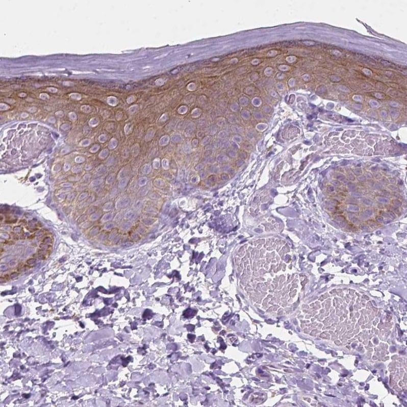 Immunohistochemistry (Formalin/PFA-fixed paraffin-embedded sections) - Anti-EPPK1 antibody (ab247172)