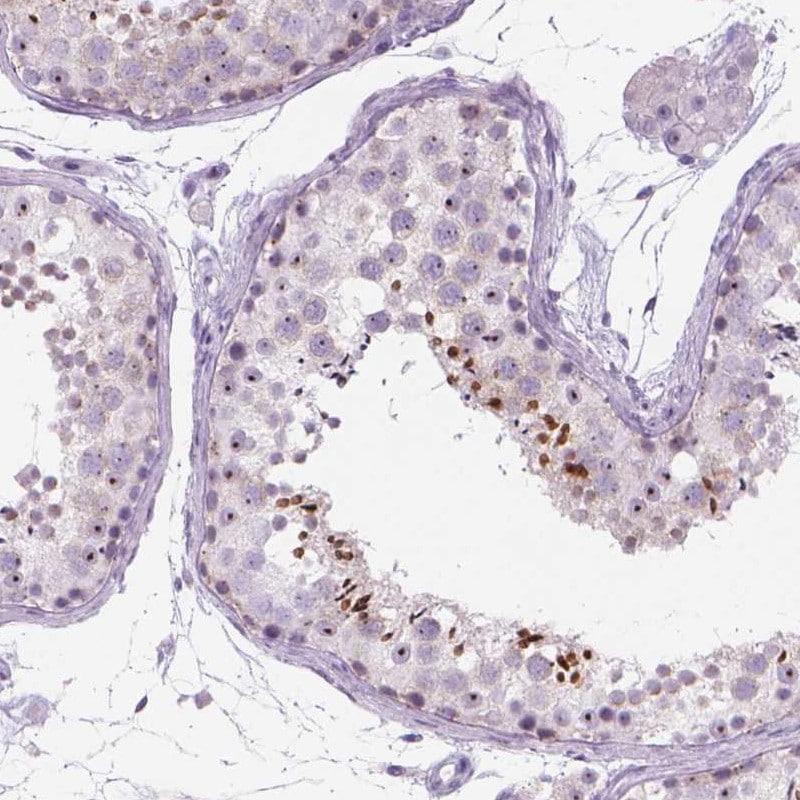 Immunohistochemistry (Formalin/PFA-fixed paraffin-embedded sections) - Anti-RP11-195F19.5 antibody (ab247174)