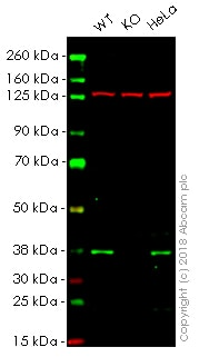 Western blot - Anti-AMPK gamma 1 antibody [Y307] - BSA and Azide free (ab247251)