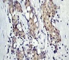 Immunohistochemistry (Formalin/PFA-fixed paraffin-embedded sections) - Anti-delta 1 Catenin/CAS (phospho Y228) antibody [E205] - BSA and Azide free (ab247254)