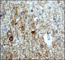 Immunohistochemistry (Formalin/PFA-fixed paraffin-embedded sections) - Anti-Neurofilament heavy polypeptide antibody [EP673Y] - BSA and Azide free (ab247290)