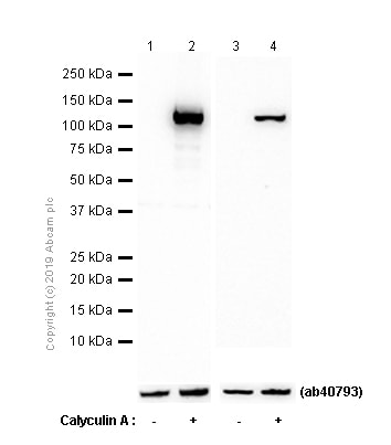 Western blot - Anti-ATP citrate lyase (phospho T447 + S451) antibody [EP737Y] - BSA and Azide free (ab247346)