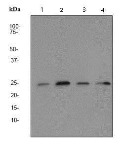 Western blot - Anti-HIP2/LIG antibody [EP1144Y] - BSA and Azide free (ab247369)