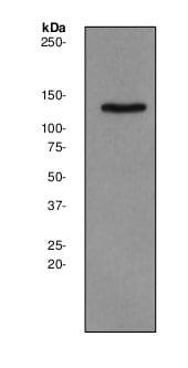 Western blot - Anti-Synaptojanin 2 antibody [EPR2062Y] - BSA and Azide free (ab247416)