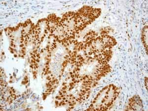Immunohistochemistry (Formalin/PFA-fixed paraffin-embedded sections) - Anti-MCM5 antibody [EP2683Y] - BSA and Azide free (ab247419)