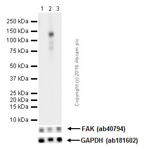 Western blot - Anti-FAK (phospho Y576) antibody [EP1897Y] - BSA and Azide free (ab247442)