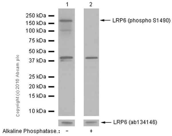 Western blot - Anti-LRP6 (phospho S1490) antibody [EP2360Y] - BSA and Azide free (ab247469)
