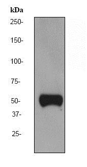 Western blot - Anti-Vitamin D Binding protein antibody [EPR2922Y] - BSA and Azide free (ab247487)