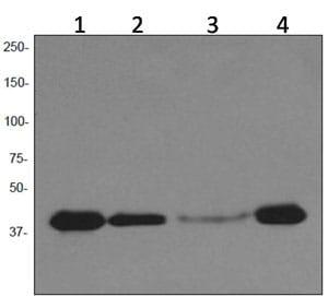 Western blot - Anti-PAR4 antibody [EPR3991] - BSA and Azide free (ab247588)