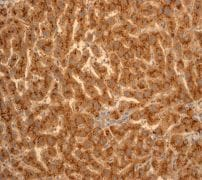 Immunohistochemistry (Formalin/PFA-fixed paraffin-embedded sections) - Anti-Apo-D antibody [EPR2916] - BSA and Azide free (ab247602)