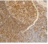Immunohistochemistry (Formalin/PFA-fixed paraffin-embedded sections) - Anti-CD74 antibody [EPR4064] - BSA and Azide free (ab247655)