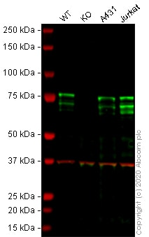 Western blot - Anti-MBD1 antibody [EPR3564] - BSA and Azide free (ab247676)