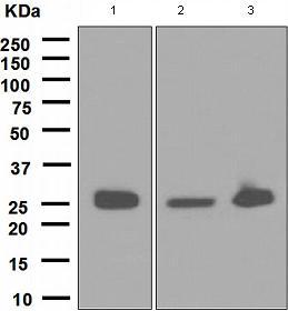 Western blot - Anti-Glutathione S Transferase mu antibody [EPR1936(2)] - BSA and Azide free (ab247682)