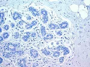 Immunohistochemistry (Formalin/PFA-fixed paraffin-embedded sections) - Anti-Myosin light chain 3 antibody [EPR4160] - BSA and Azide free (ab247710)