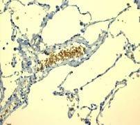 Immunohistochemistry (Formalin/PFA-fixed paraffin-embedded sections) - Anti-Glycophorin C/GPC antibody [EPR4116] - BSA and Azide free (ab247712)