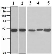 Western blot - Anti-MAGEA1 antibody [EPR4276] - BSA and Azide free (ab247762)