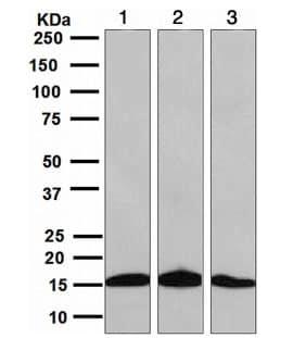 Western blot - Anti-SH2D1A/SAP antibody [EPR3168] - BSA and Azide free (ab247769)