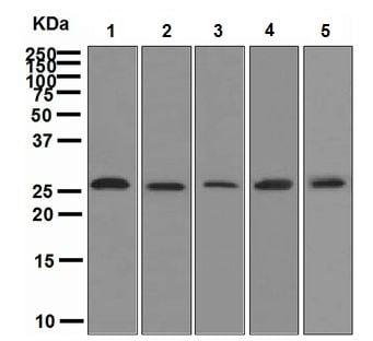 Western blot - Anti-Neurogenin 2/NGN2 antibody [EPR4178] - BSA and Azide free (ab247776)