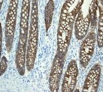Immunohistochemistry (Formalin/PFA-fixed paraffin-embedded sections) - Anti-LI Cadherin antibody [EPR3996] - BSA and Azide free (ab247786)