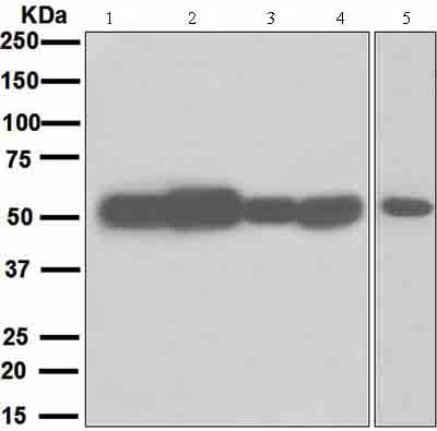 Western blot - Anti-Muscarinic Acetylcholine Receptor 2/CM2 antibody [EPR4568] - BSA and Azide free (ab247798)