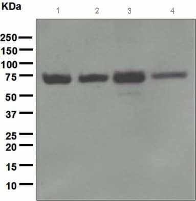 Western blot - Anti-NF2 / Merlin antibody [EPR2573(2)] - BSA and Azide free (ab247805)