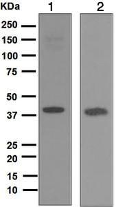 Western blot - Anti-REM/GES antibody [EP4482] - BSA and Azide free (ab247970)