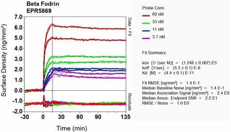 OI-RD Scanning - Anti-SPTBN1 antibody [EPR5869] - BSA and Azide free (ab248042)
