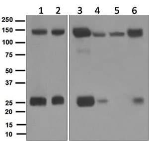 Western blot - Anti-Integrin alpha V antibody [EPR5583] - BSA and Azide free (ab248077)