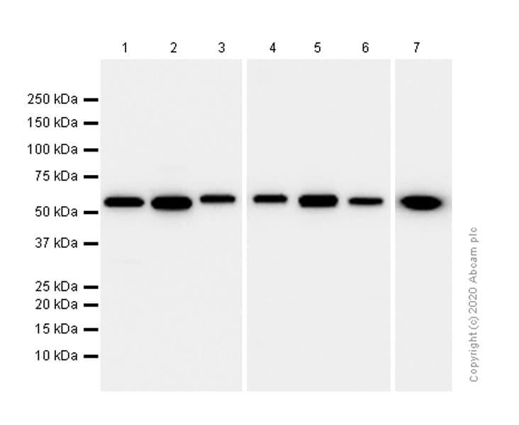 Western blot - Anti-LMAN1 antibody [EPR6979] - BSA and Azide free (ab248096)