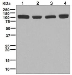 Western blot - Anti-CPSF2/CPSF100 antibody [EPR7599] - BSA and Azide free (ab248172)